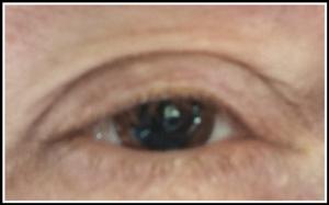 Dilated_Eye_Suz_30-March-2017_500